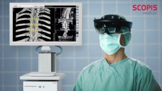 Augmented Reality, Spine Surgery Using Scopis Holographic Navigation and Microsoft HoloLens, The Future of Surgery, Smart Glasses, The Future of Medicine